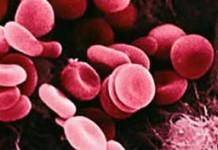 โรคจะแพร่ระบาดเมื่อสภาพอากาศเปลี่ยนแปลง, โรคเอดส์, โรคเบาหวาน, โรค, โรคมะเร็ง, โรคหัวใจ, โรคภูมิแพ้